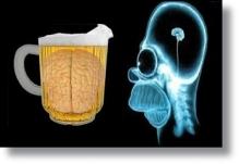 cerveza_cerebro