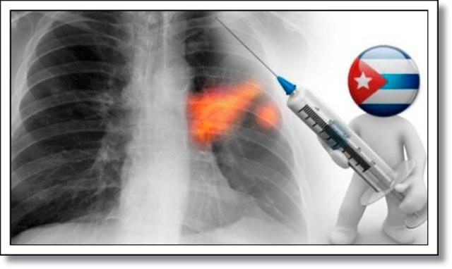 cuba-vacina-cancer-pulmao